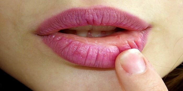 The Best Lip Plumper - Choose the Best Lip Plumper For You